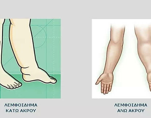 Συμπτώματα Λεμφοιδήματος